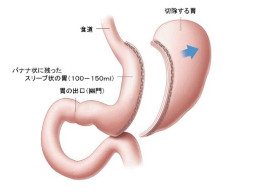 図2:胃スリーブ切除